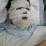 Rare case of CRPS, two sons, and the South Korean army